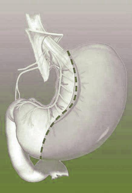 mao-sleeve-operatsioon