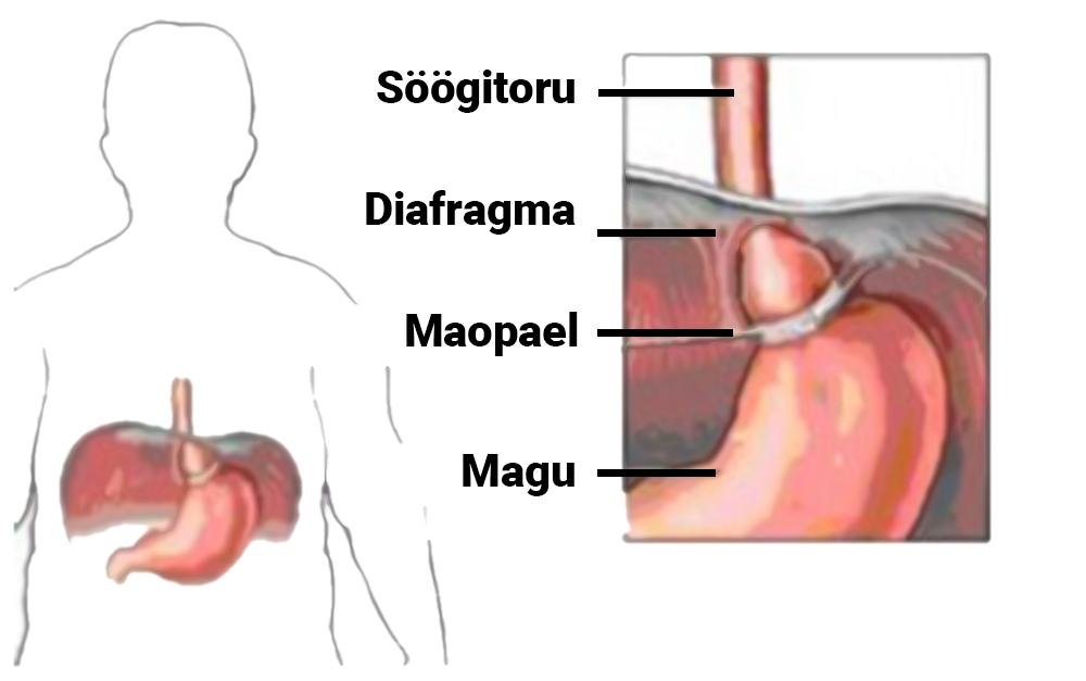maopael